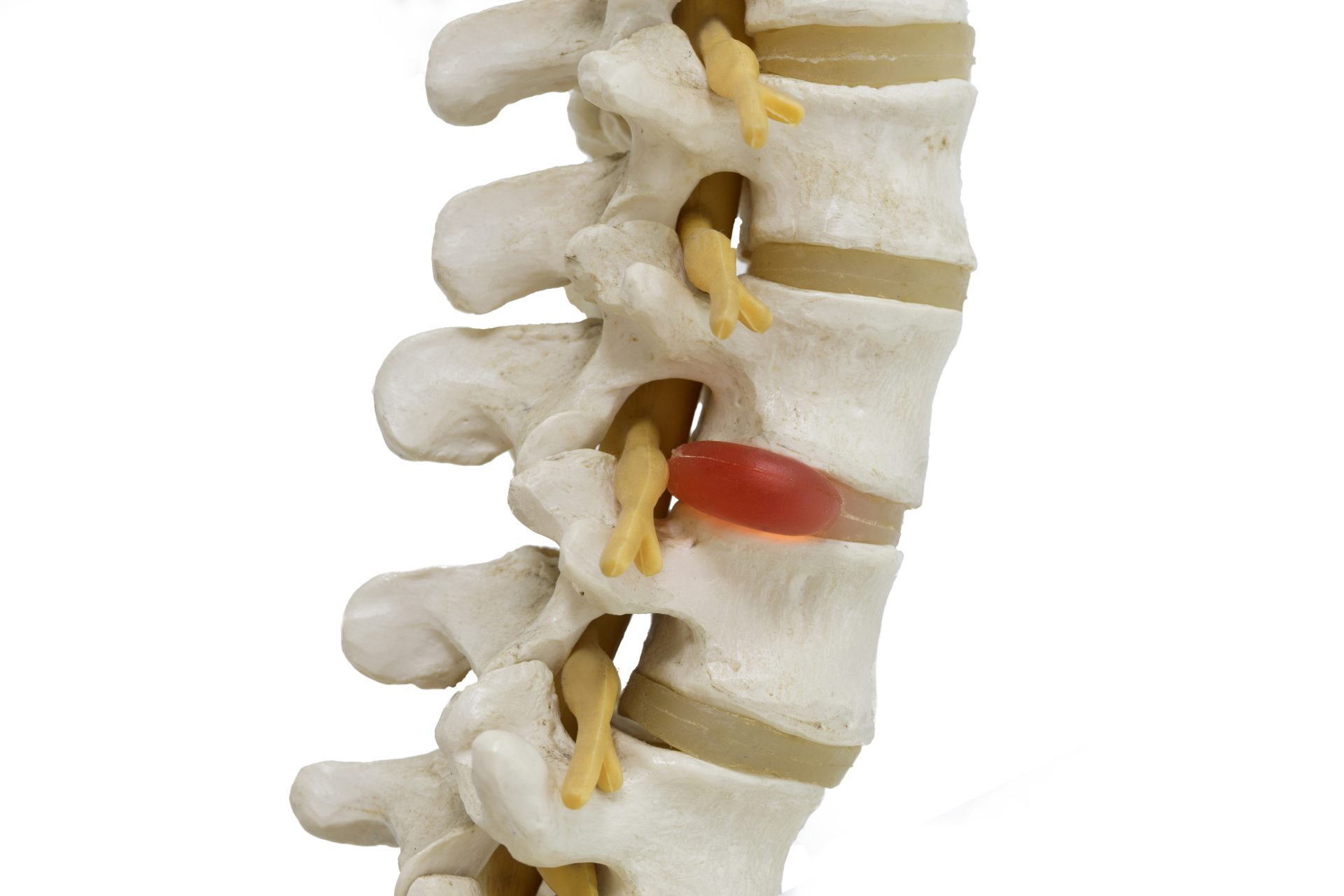 chiropractor in Middle River -- Comprehensive Spine and Sports Center