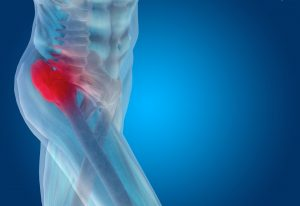 chiropractor in Nottingham -- Comprehensive Spine and Sports Center